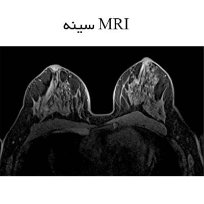 MRI سینه