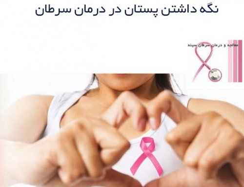 نگه داشتن پستان در درمان سرطان