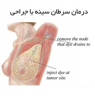 درمان سرطان سینه با جراحی